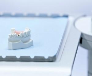 Zahnimplantate Ludwigshafen